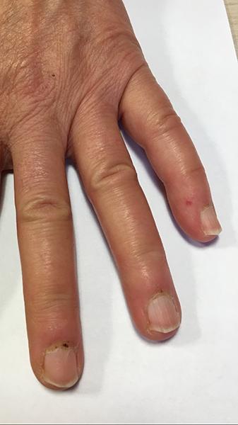 Sclérodermie_Anomalies des ongles (suffusions hémorragiques et mégacapillaires) visibles à l'oeil nu