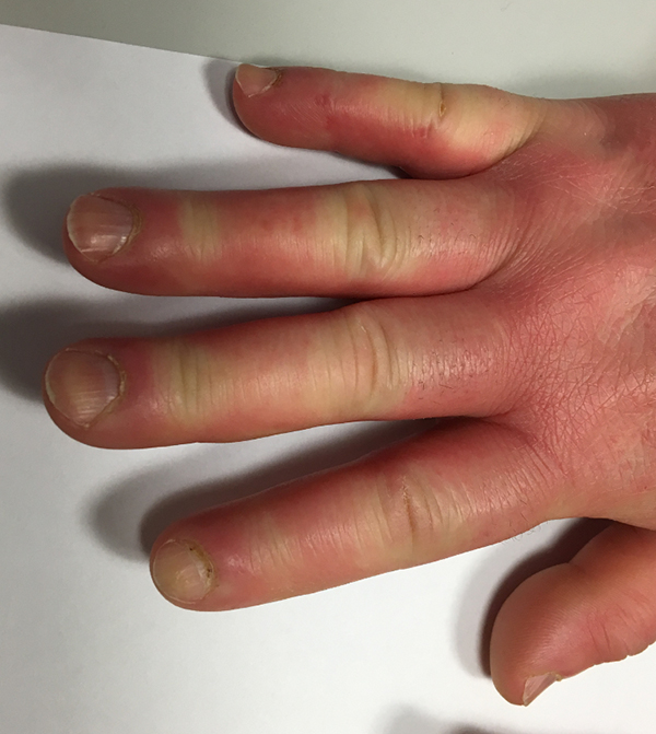 sclerodermie_doigts_boudines_souffrant_de_raynaud